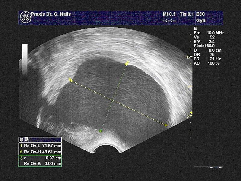 Endometriose / Ultraschall