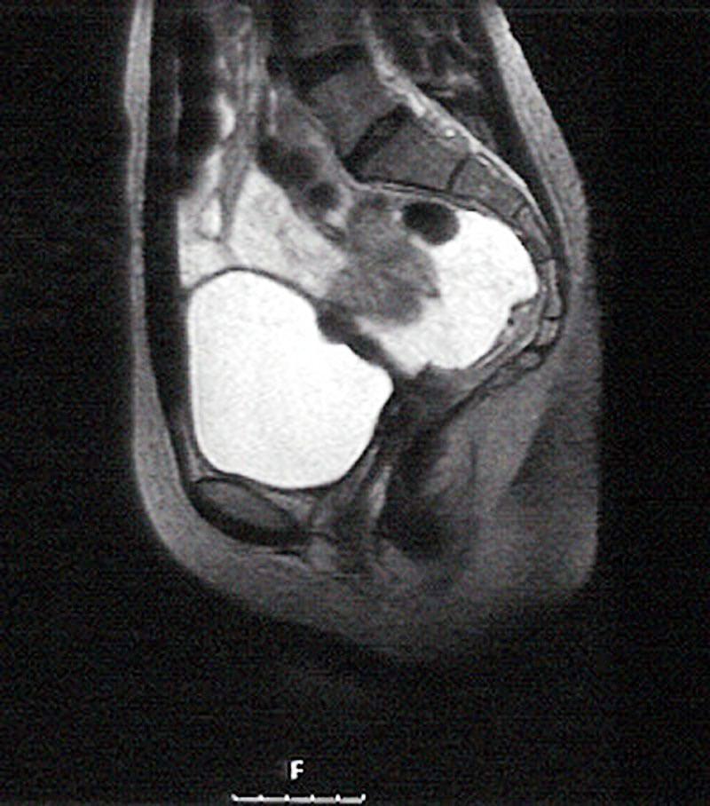 Endometriose / MRT